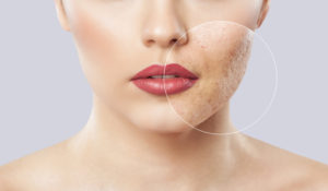 How Do Lasers Treat Acne and Acne Scars?