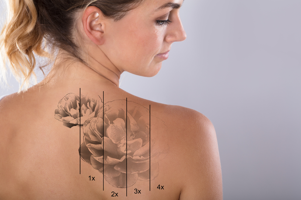 How Do I Find the Best Tattoo Removal Specialist Near Me?