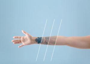 PicoSure Tattoo Removal