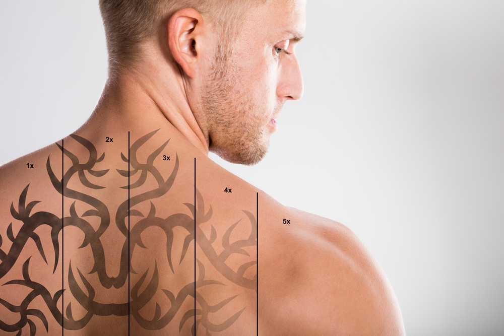 Laser Tattoo Removal Experts in Northern Virginia