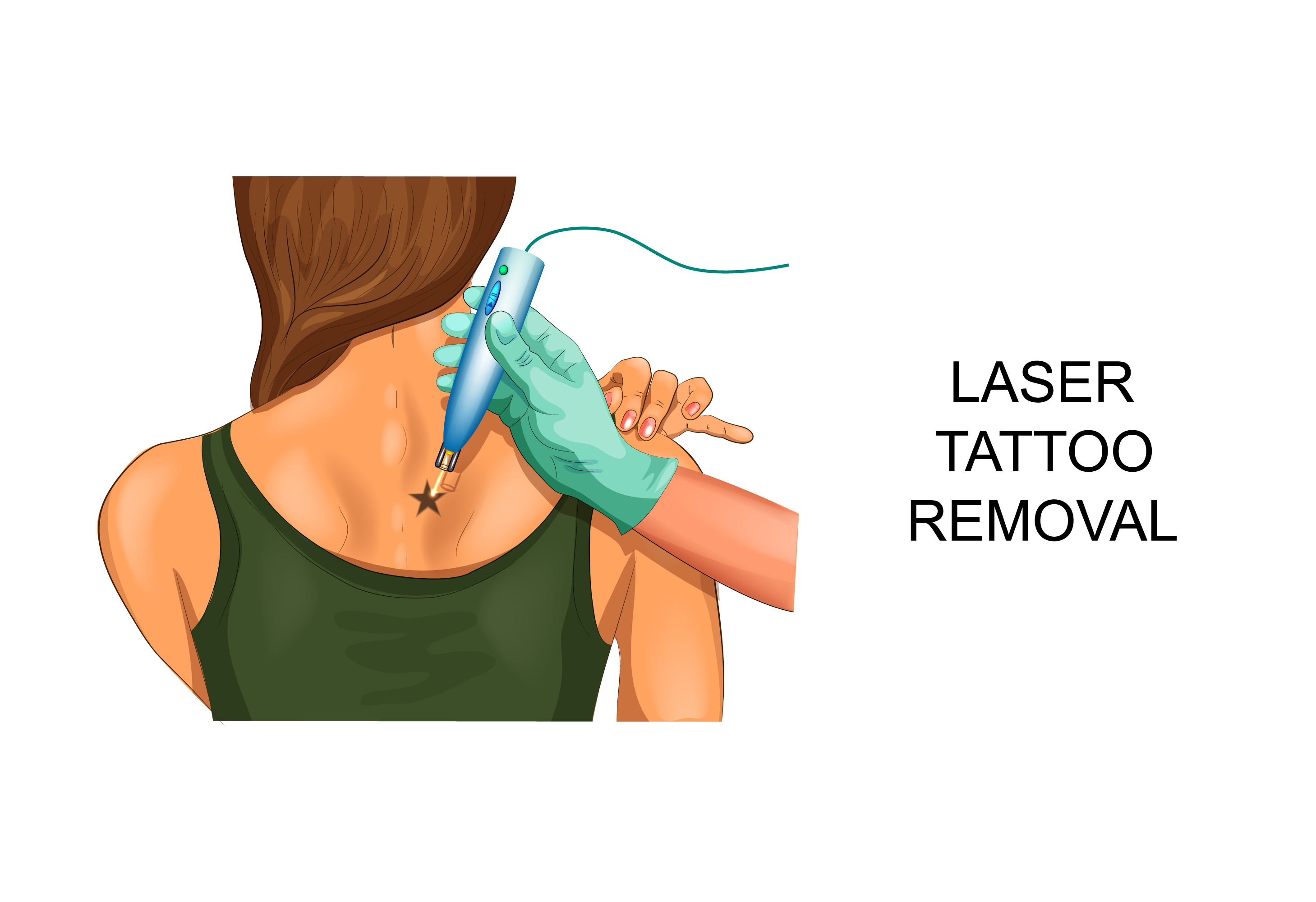 Is Tattoo Removal Permanent