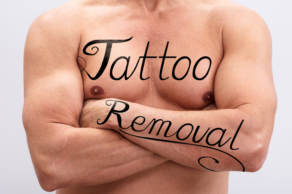 Laser Tattoo Removal in Loudoun County