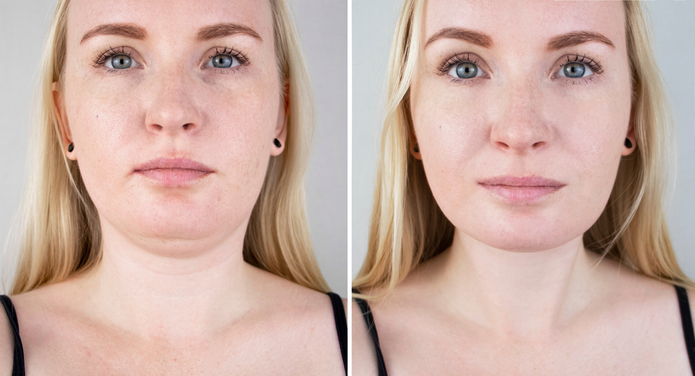 CoolSculpting for Double Chin