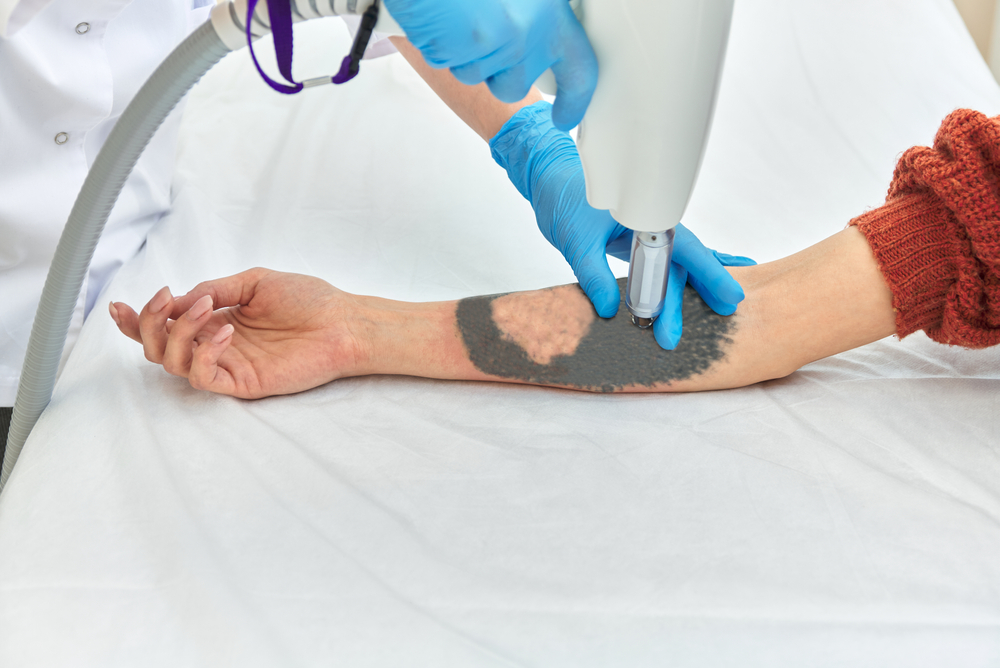 Your Quick Guide to Laser Tattoo Removal in Ashburn Virginia