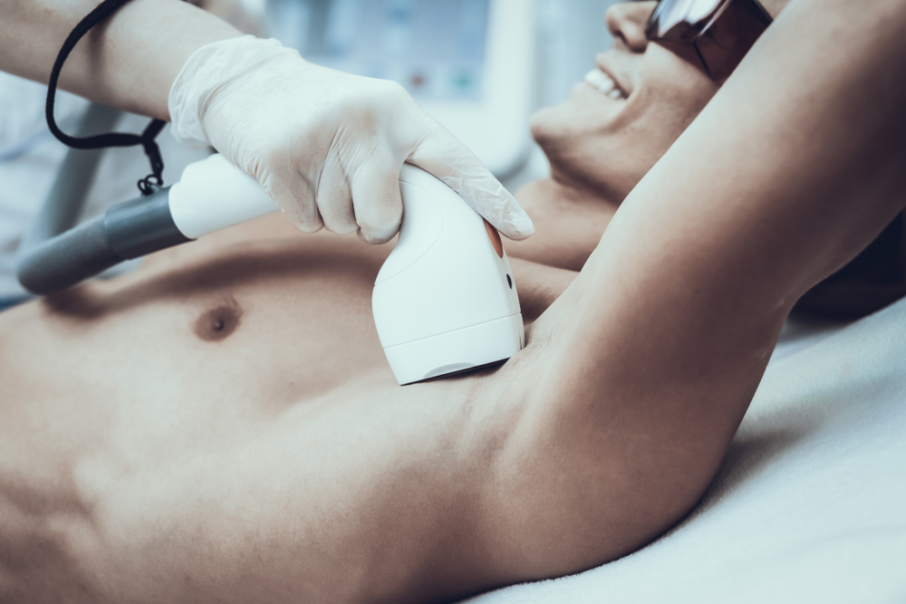 5 Things You Should Know About Laser Hair Removal for Men